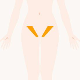 Vライン(サイド)