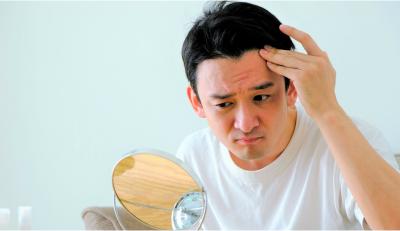 ストレスによる欠航不良が抜け毛に繋がる