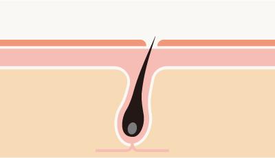 ストレスによる亜鉛不足が発毛を妨げる
