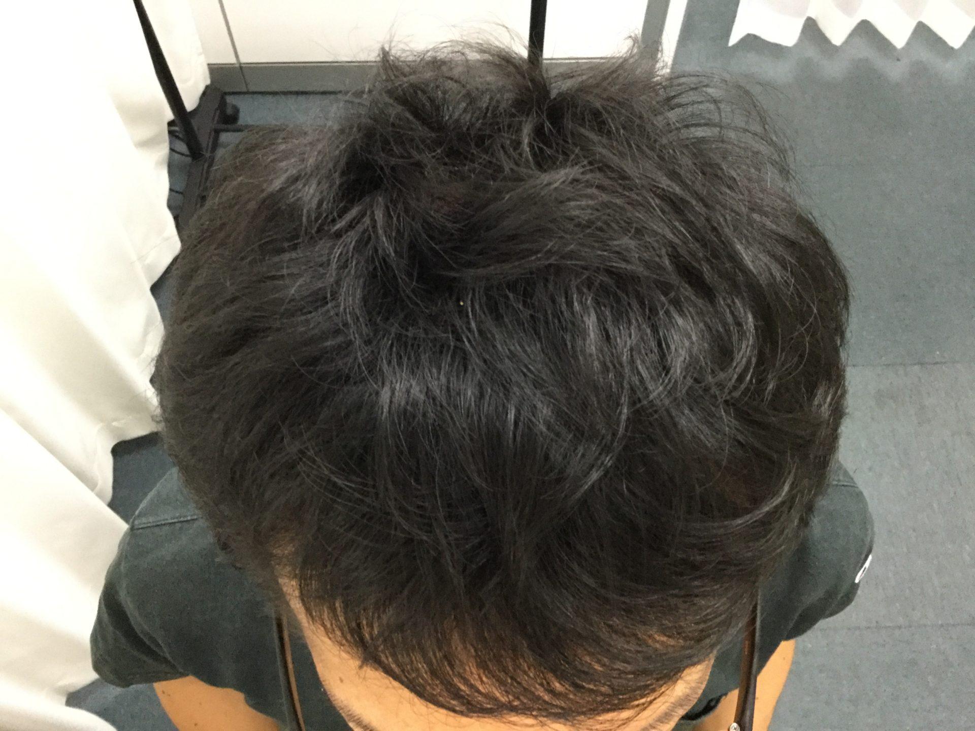AGA内服+メソ 12ヶ月目【合計費用403,200円】